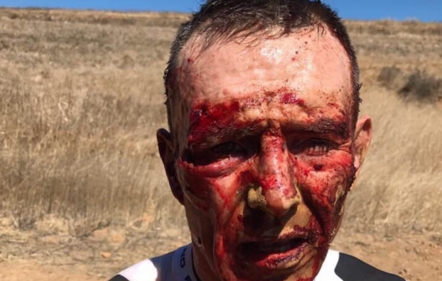 Joel Stransky was seriously hurt after a bike crash in his home country of South Africa.